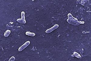 Bordetella bronchiseptica bacterie