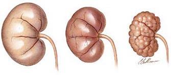 Nieren, gezond en bij nierfalen