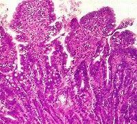 IBD - ontstoken darmwand