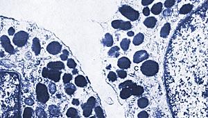 Iris stromal melanocytes